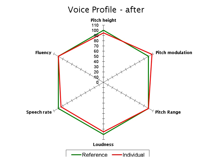 Voice Profile - After