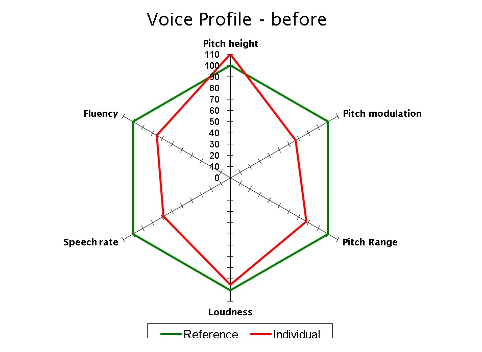 Voice Profile - Before